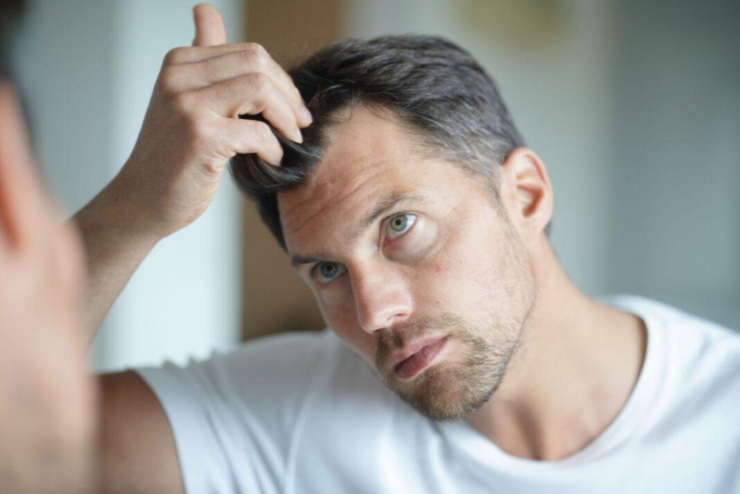 vegan hair loss